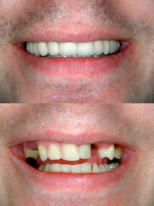 Before and after Smile design dental procedure photos . Selective soft focus.